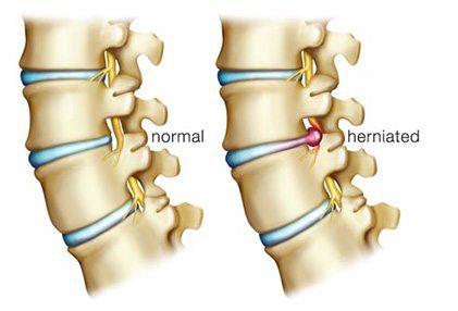 Discos Normal y Herniado - El Paso Chiropractor
