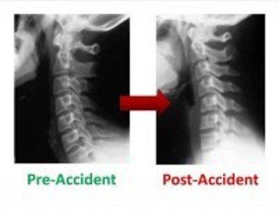 personal injury doctor pre accident post accident el paso tx