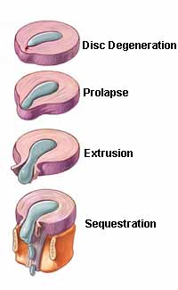 Herniated Disc'in Progression - El Paso Chiropractor