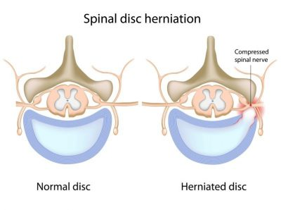 Spinal Herniated Disc Diagram - El Paso Chiropractor