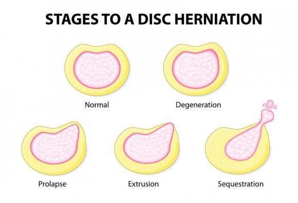 Stages to a Disc Herniation - El Paso Chiropractor