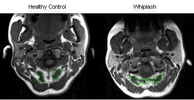 Whiplash CT Scan