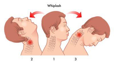 Whiplash Diagram - El Paso Chiropractor