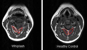 Temuan MRI Whiplash - El Paso Chiropractor