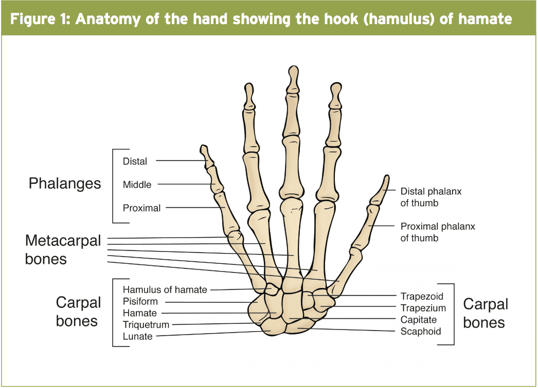 Hand Injuries: Hook Of Hamate Fractures