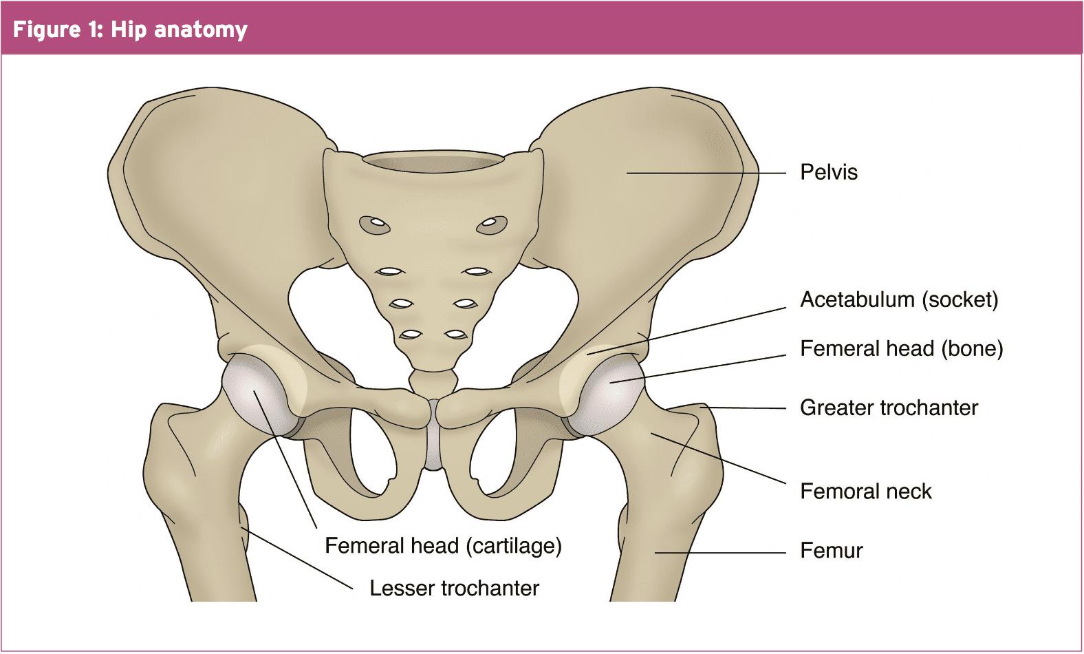 Hip Musculoskeletal Disorder Femoro Acetabular Impingement