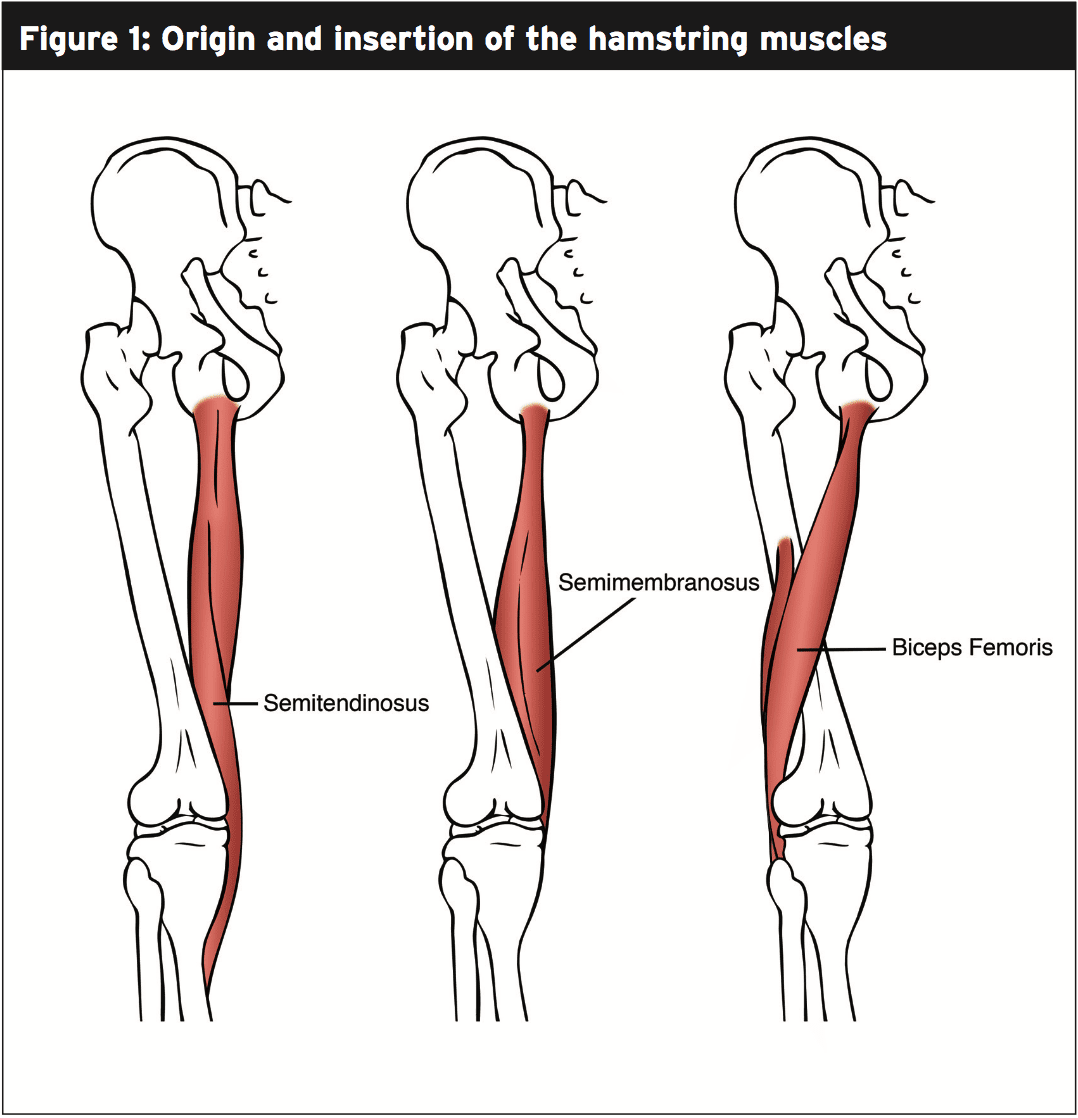 Hamstring Avulsion: Rehabilitation Class Part I