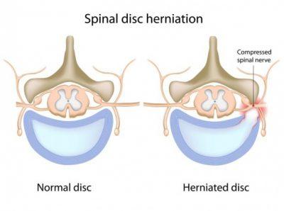 Diagrammes de disques normaux et hernies