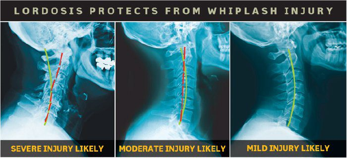 lordosis protects from whiplash - El Paso Chiropractor