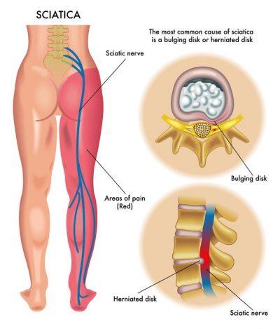 piriformis_syndrome_sciatic-nerve - El Paso Chiropractor