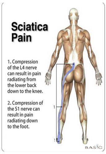 sciatica-pain-pic-pranic-healing2.jpg