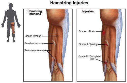 Hamstring injuries e