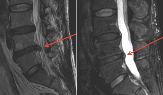 Herniated Disc More MRIs