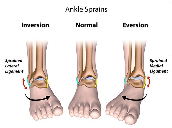 ankle sprains chiropractic treatment el paso tx.