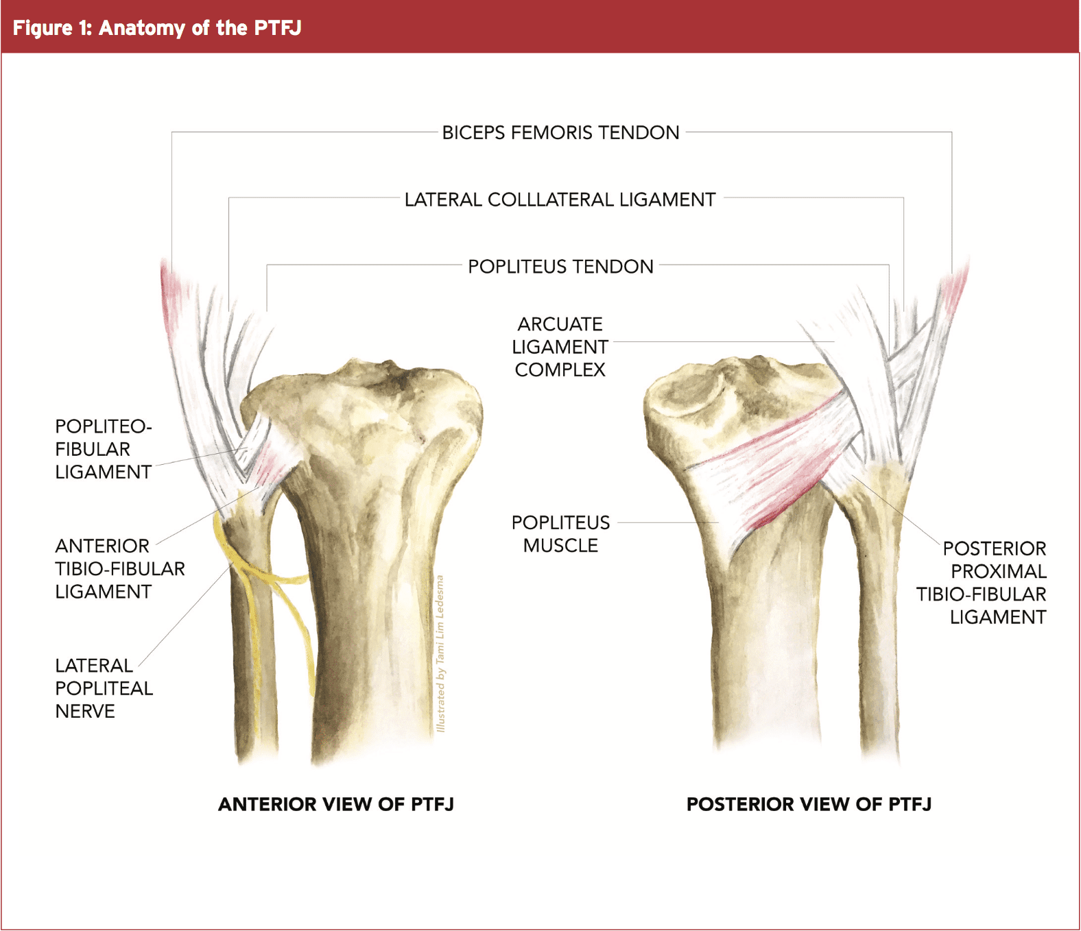 PTFJ & Lateral Knee Pain: The Science