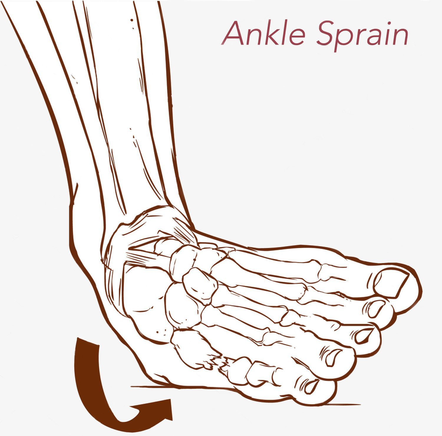 ankle sprains Ankle sprains are the most common musculoskeletal injury and affect people of  all ages they are particularly common in activities with a lot of jumping or cutting .