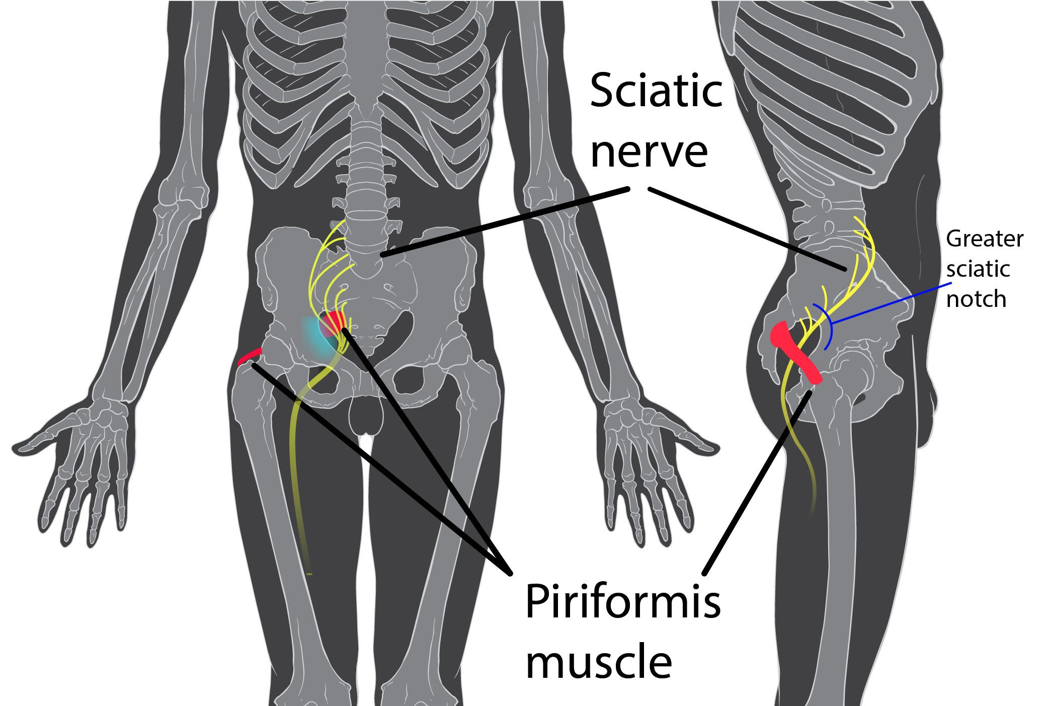 Piriformis_syndrome