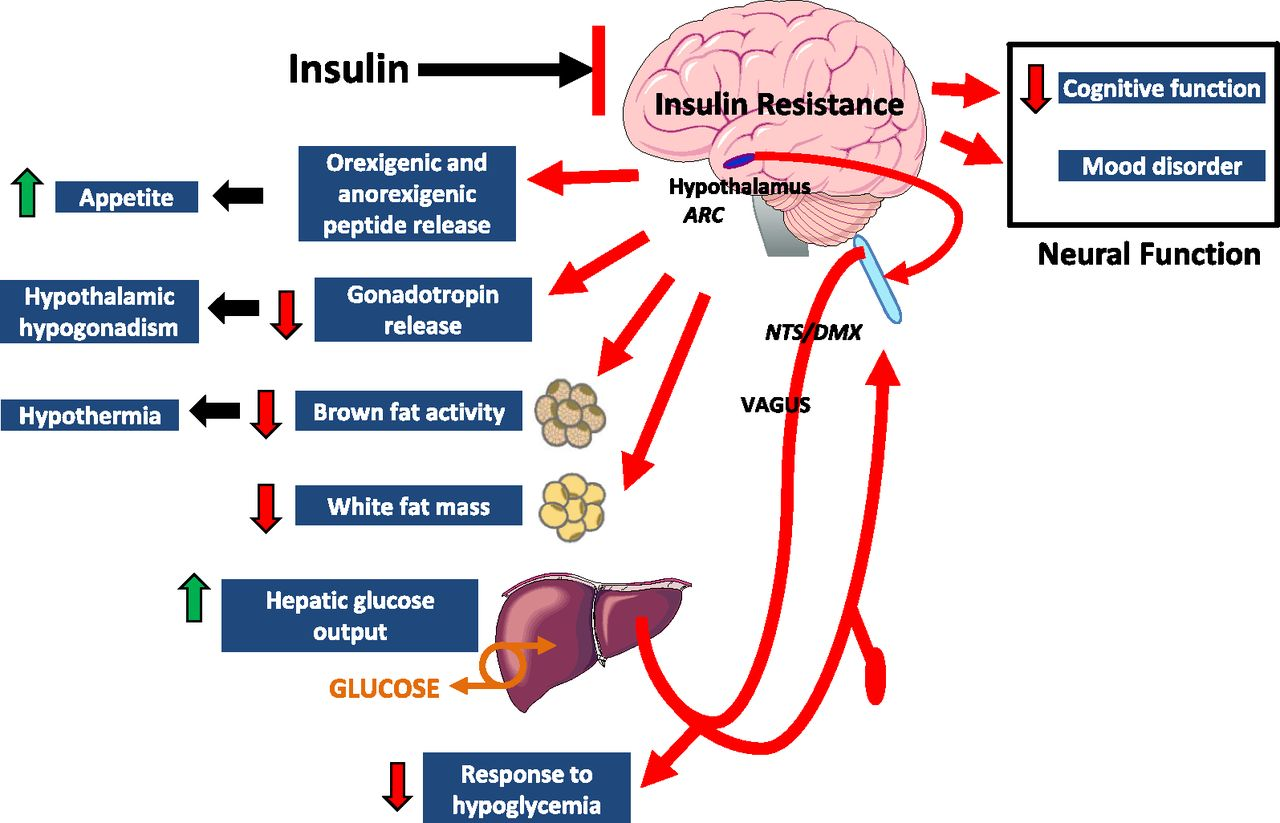 metabolic Hypothalamic Inflammation And Insulin Resistance