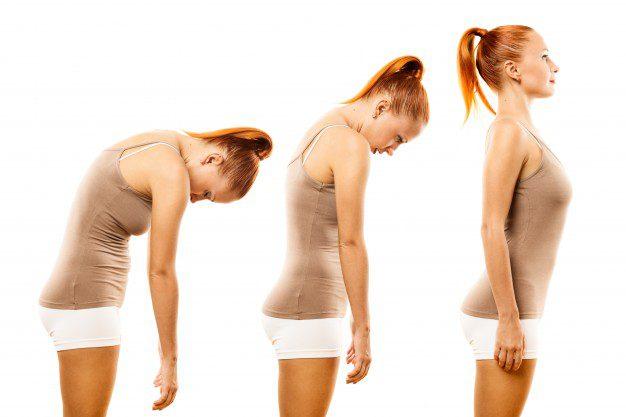 Posebnost posture
