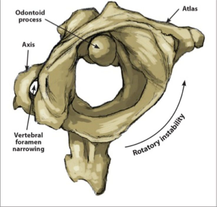 Figure 1 Atlanto-Axial Rotational Instability