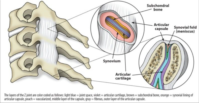 Figure 2 Typical Z Joint