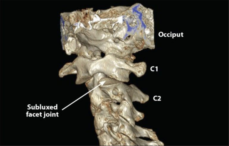 Figure 5 3D CT Scan of Upper Cervical Spine