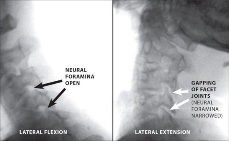 Figur 6 Digital Motion X-Ray demonstrerer Multi-Level Cervical Instability