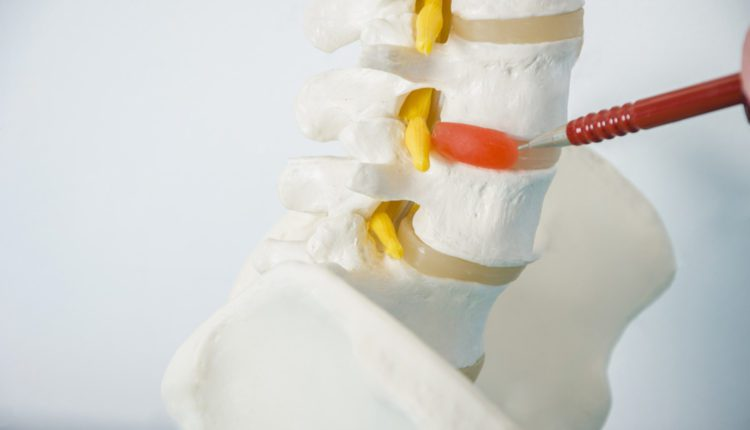 Herniated Disc Treatment