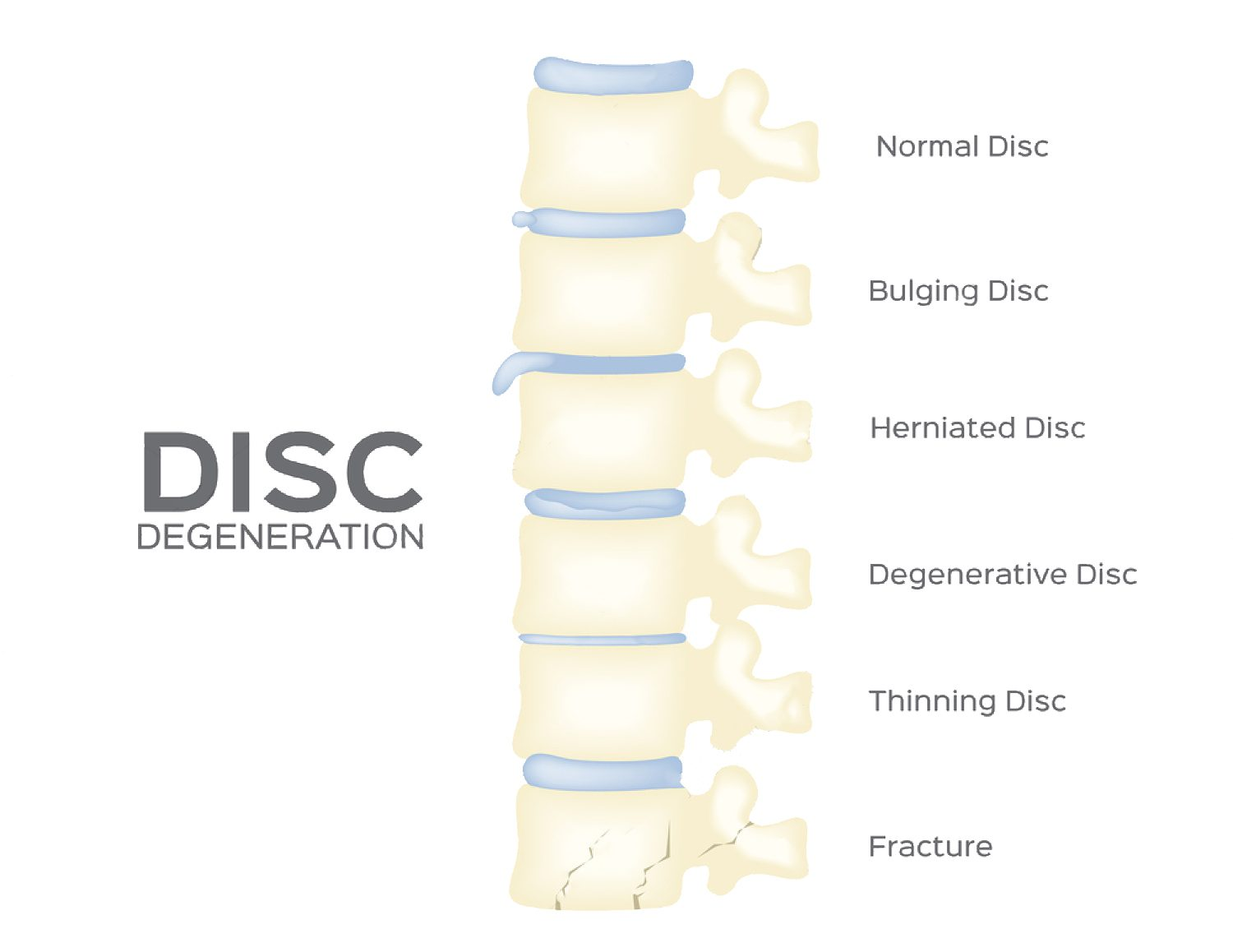 Herniated disc hoito