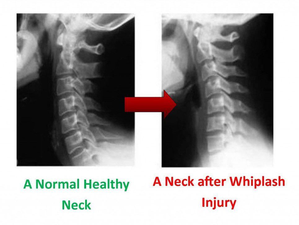 Imagen que muestra rayos X antes y después del latigazo cervical.