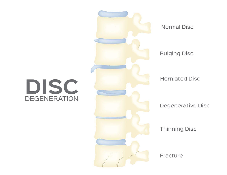 degenerative disk disease el paso tx.