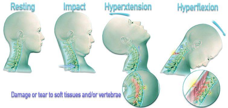Диаграмма, показывающая процесс хлыстовой травмы в результате автомобильной аварии.