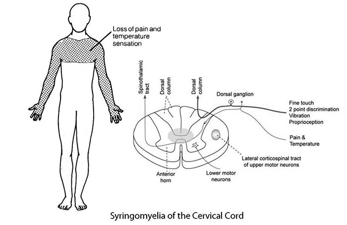 presentasi neuropati el paso tx.