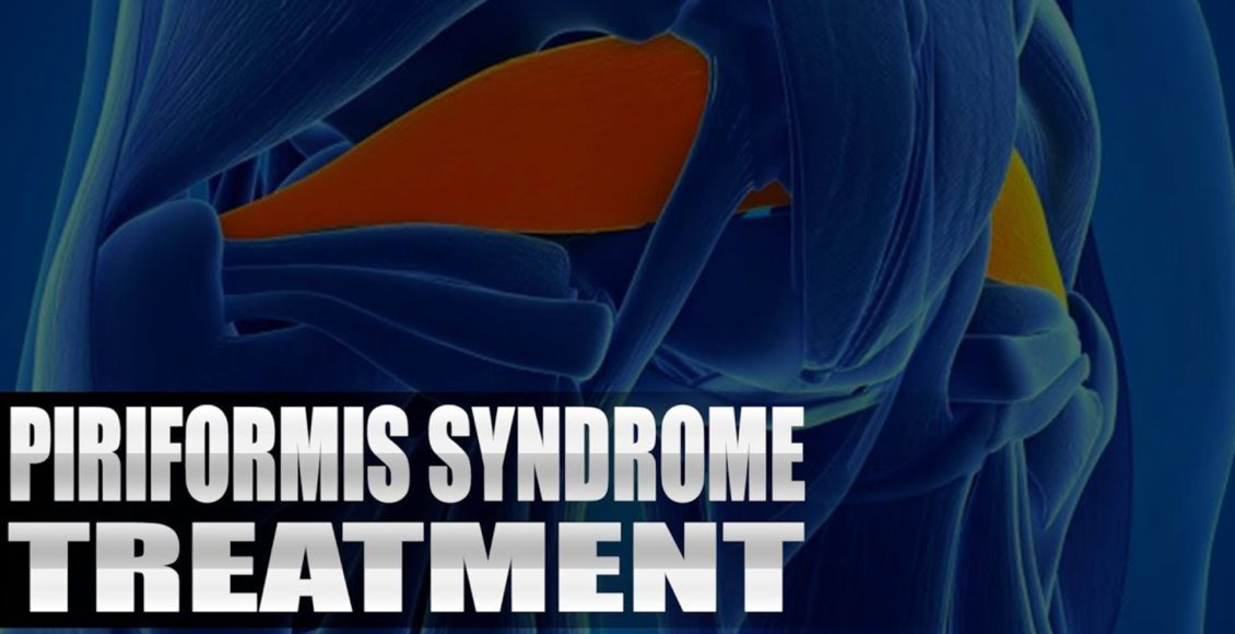 piriformis syndrome treatment el paso tx.