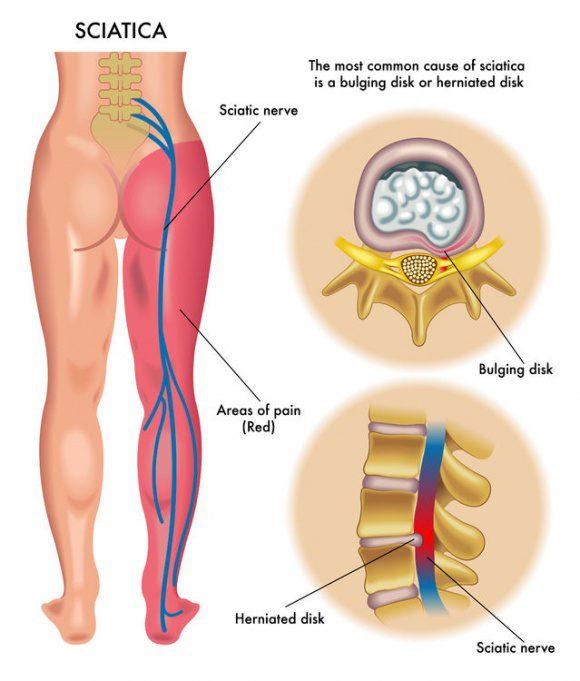 Sciatic-Nerve-Pain-diagram.jpg