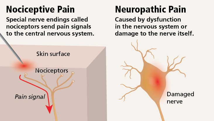 Neuropathic-Pain-vs-Nociceptive-Pain-Diagram-1.jpg