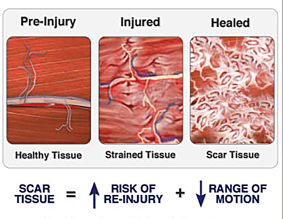 Scar-Tissue-Diagram.png