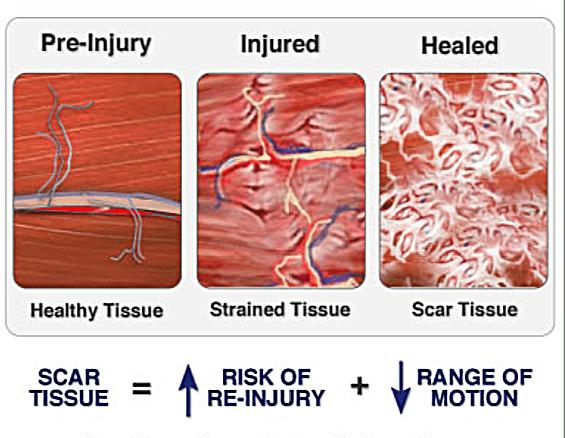 Scar-Tissue-diagram.png