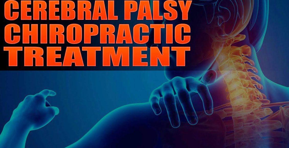 脳性麻痺エルパソtx。