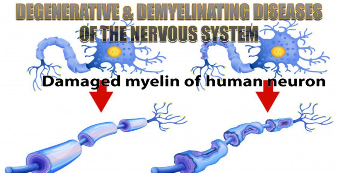 degenerative diseases el paso tx.