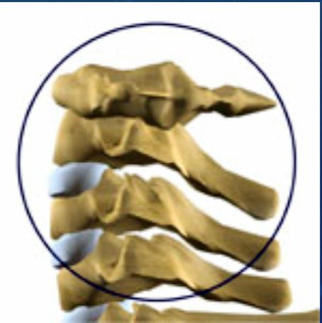 radiculopathies chiropractic care el paso tx.