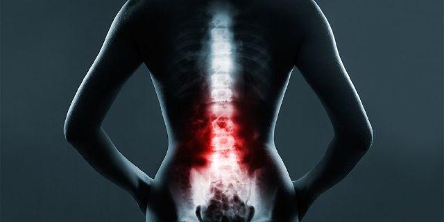 Peran Radiologi Darurat di Spinal Trauma | El Paso, TX Chiropractor