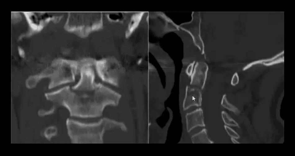 trauma spinal el paso tx.