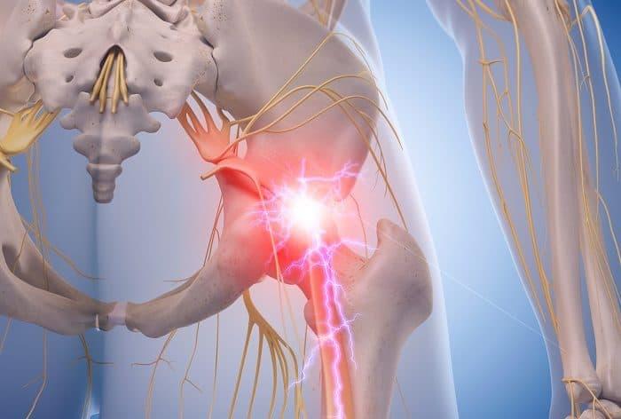Gerenciamento da Síndrome Piriforme | El Paso, TX Chiropractor