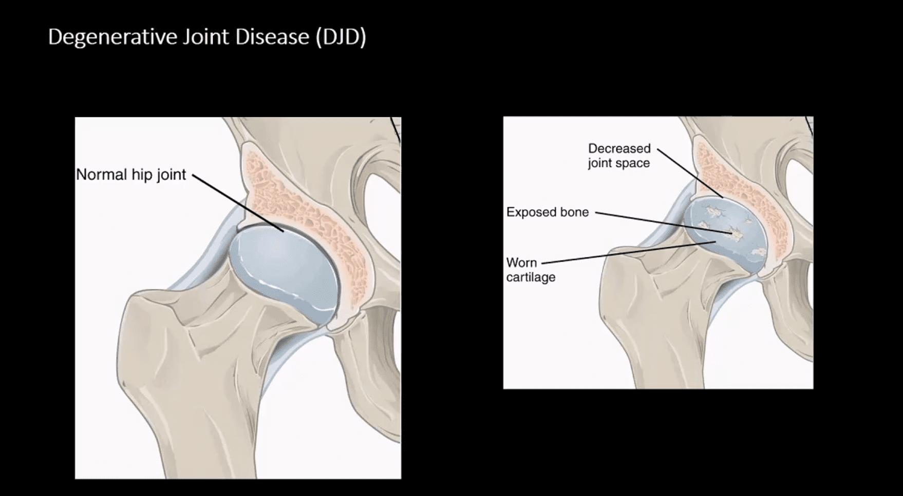 Diagnóstico de artritis de cadera y neoplasias el paso tx.