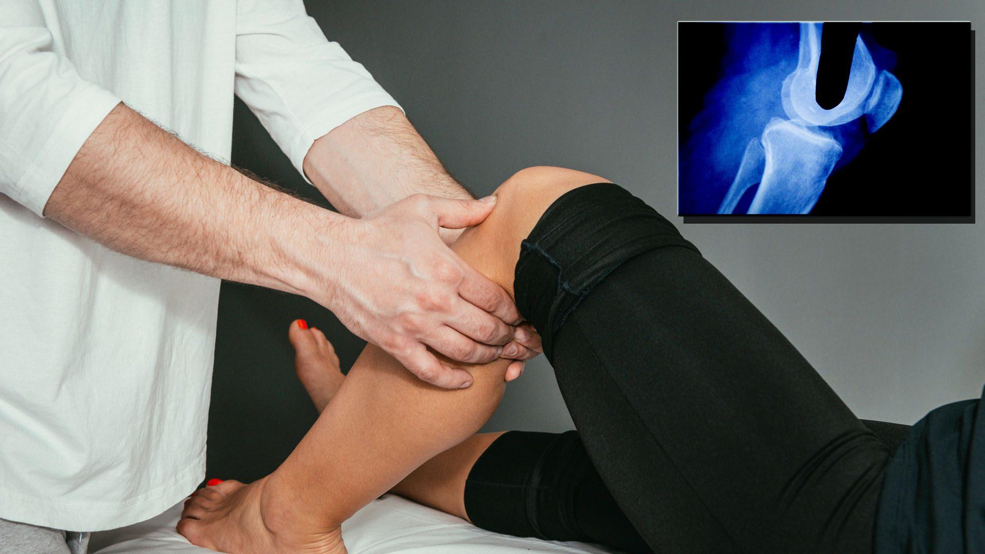 dolore al ginocchio trauma acuto el paso tx.