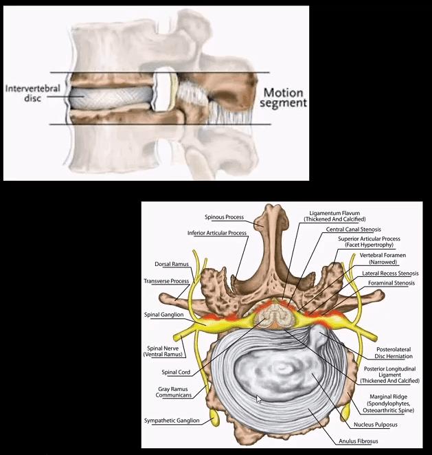 vertebra artrito el paso tx.