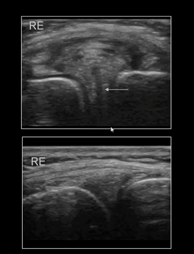 膝痛急性外傷エルパソtx。