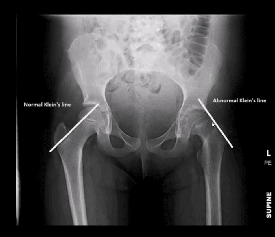 診断股関節炎および新生物el paso、tx。