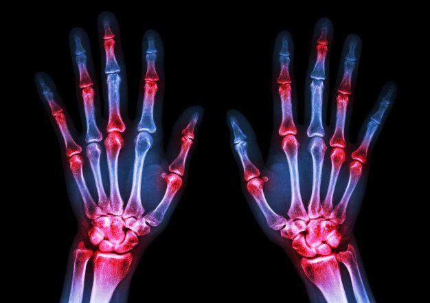 Imagen de rayos X de manos que muestra artritis reumatoide.